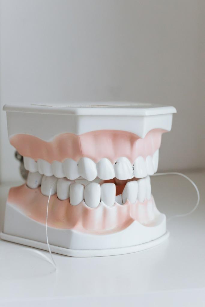 restauration dentaire complète